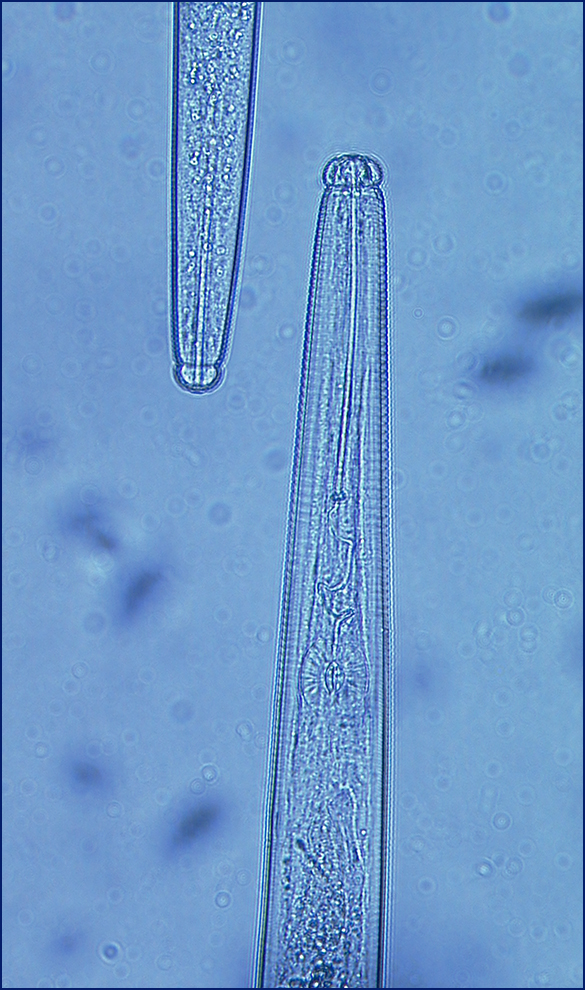 microscope image of a nematode