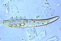 IFAS NEWS: Microscopic Mites May Be Linked To Acne, Thinning